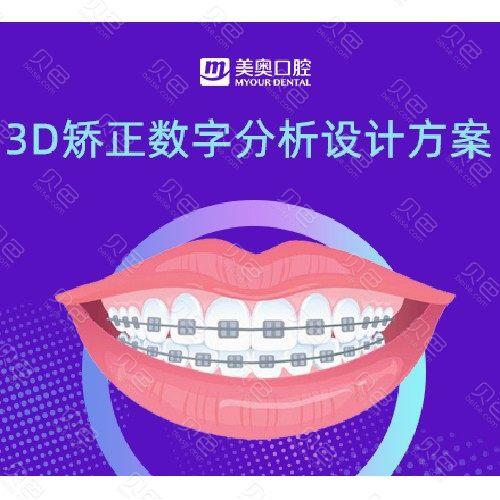 【正畸取模设计方案】3D矫正数字分析设计方案