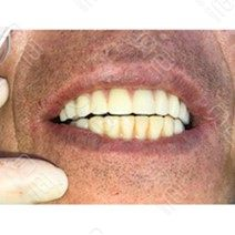成都极光口腔(成华院)全口种植治疗对比案例