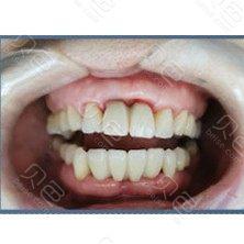 成都极光口腔(成华院)门牙种植治疗对比案例