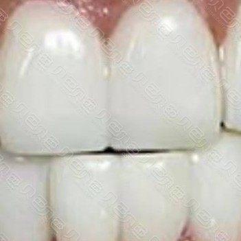 杭州美奥口腔瓷贴面美白牙齿案例