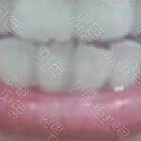 南昌辉煌口腔永修分院正雅隐形牙齿矫正案例