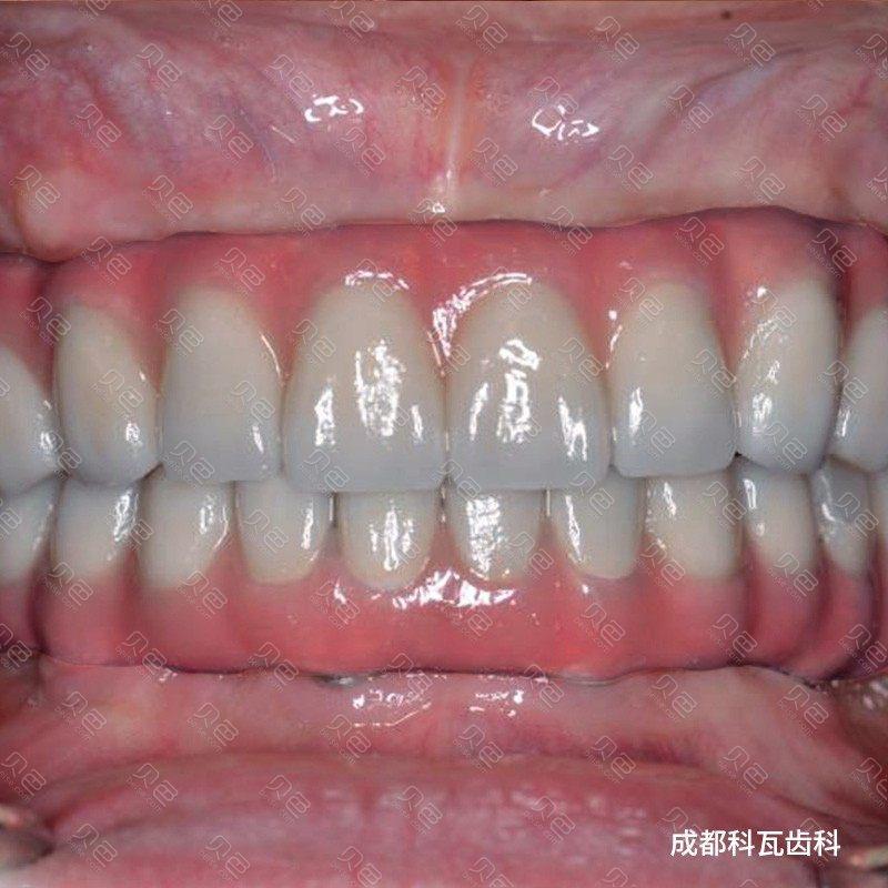 老人全口种植牙