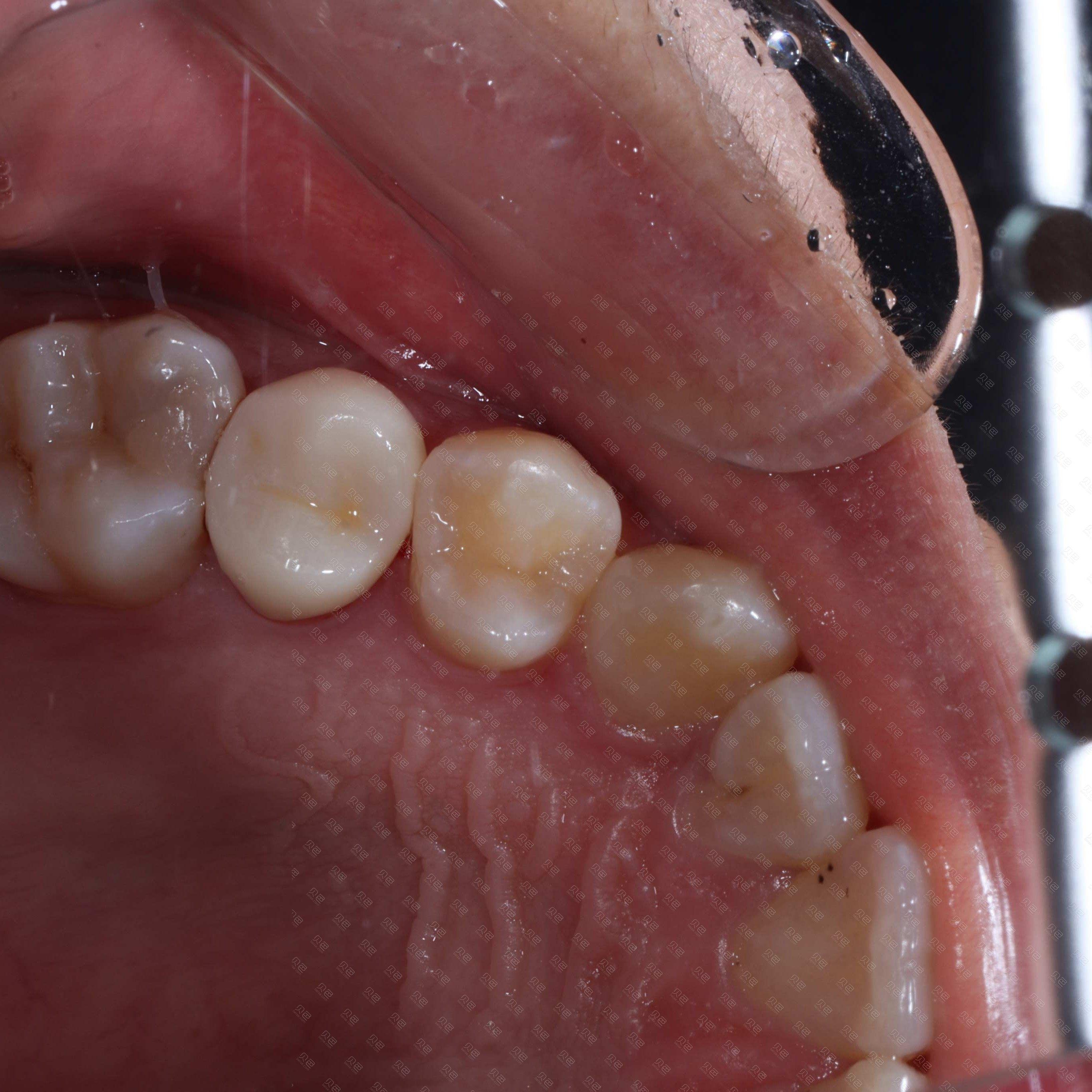后牙冠修复病例
