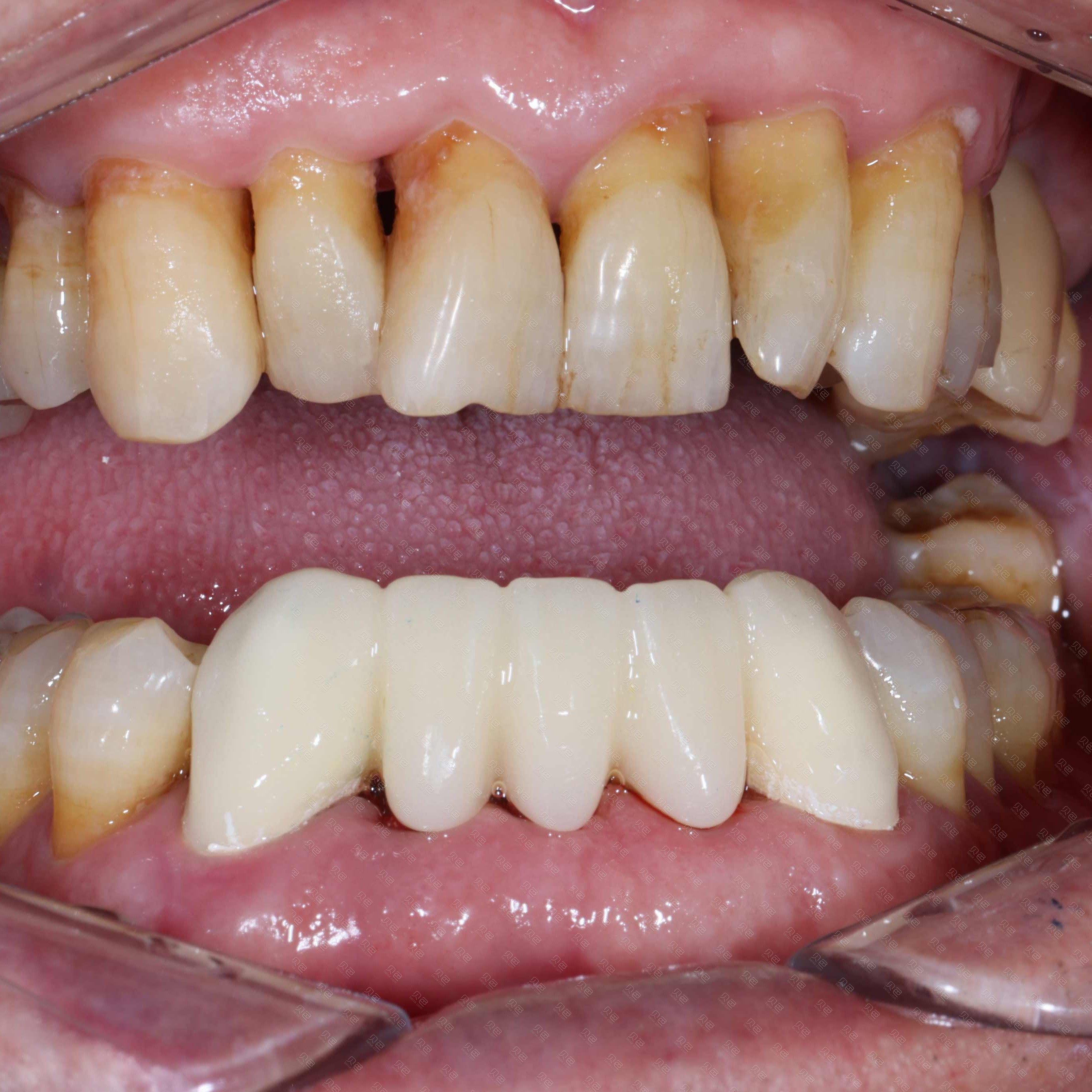 前牙拔牙即刻3D 打印戴牙