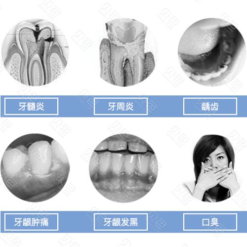 牙齿龋坏照片