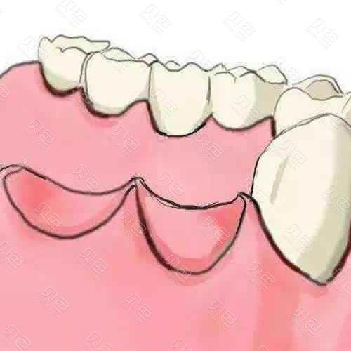 牙齿缺失卡通图