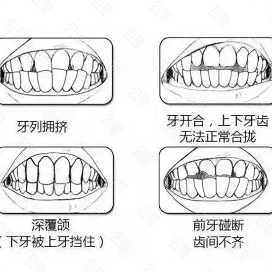 牙齿的各种情况照片