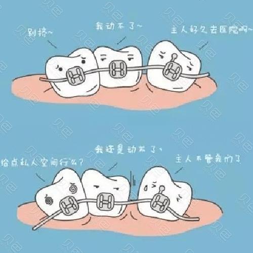 牙齿矫正动画图