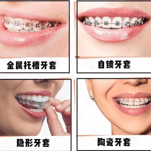 常见的牙齿矫正方式
