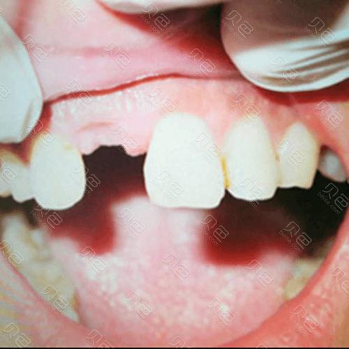 牙齿缺失图片