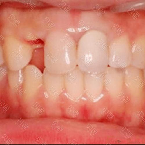 牙齿缺失影响美观