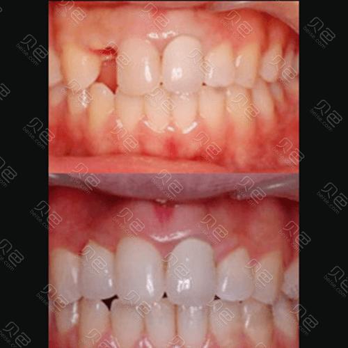 种植牙修复牙齿缺失案例