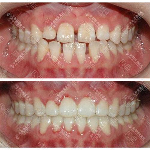 成都博爱牙齿矫正前后对比效果图