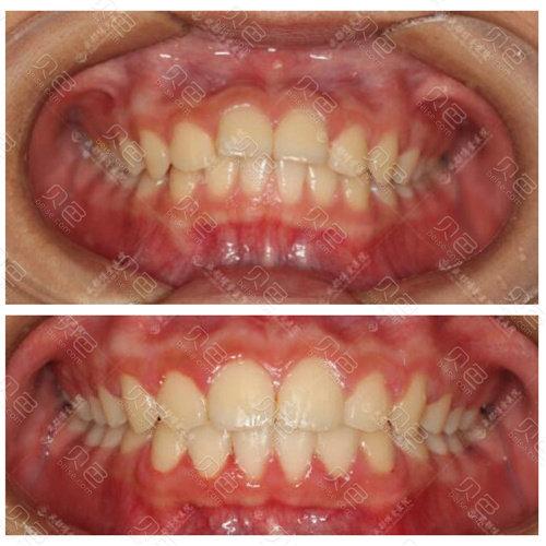 博爱口腔牙齿矫正前后变化图
