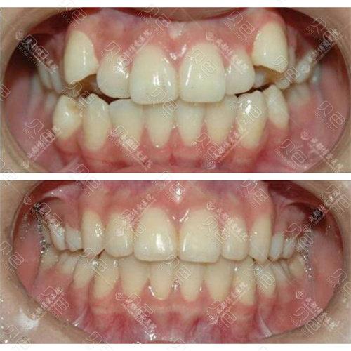 博爱口腔医院牙齿矫正效果图片