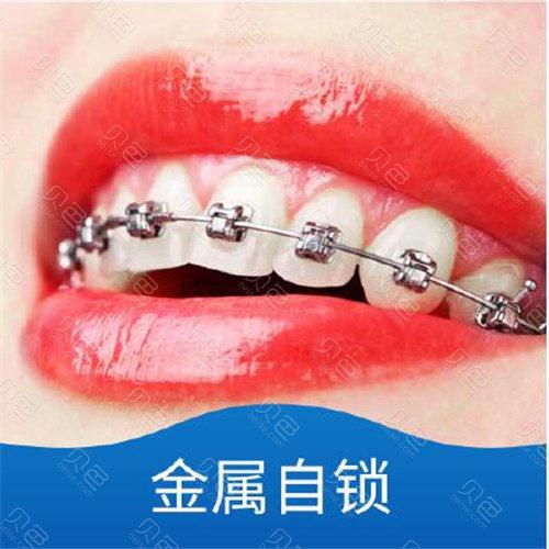 成都隐形矫正牙齿价格多少