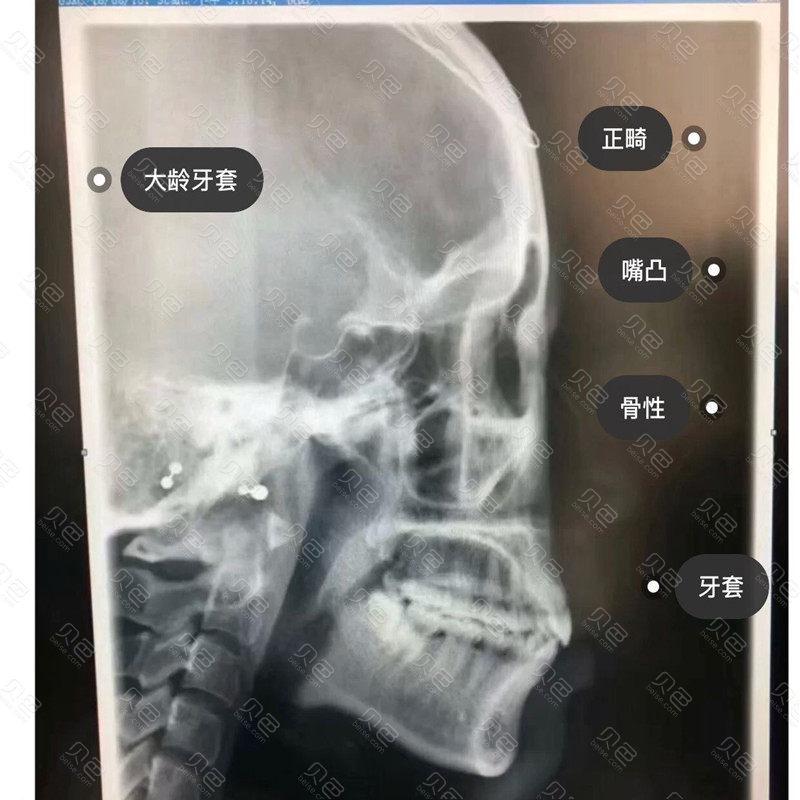 拍的牙齿情况