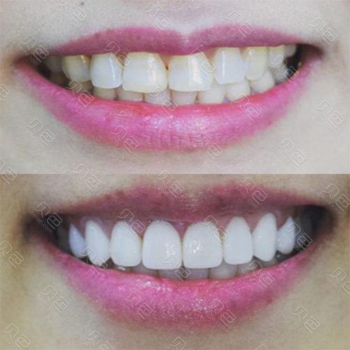 纯钛烤瓷牙和全瓷牙哪个耐用?后牙做全瓷还是纯钛好?