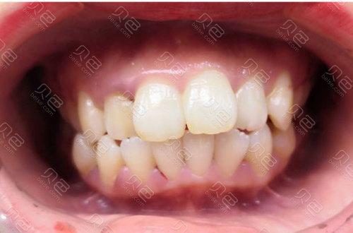 牙齿矫正前示例图