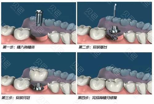种植牙手术步骤