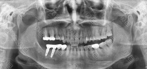 做种植牙后口腔情况拍照