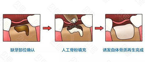 种植牙加入骨粉骨膜流程图