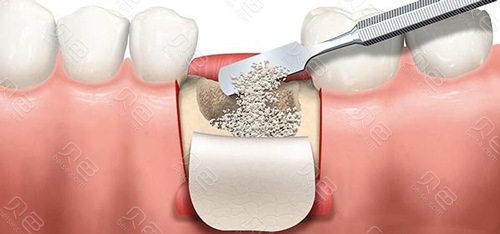 种植牙添加骨粉示意图