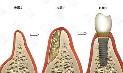 牙槽骨加入骨粉骨膜变化图