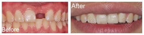 青岛维乐口腔单颗牙种植案例