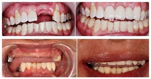 青岛全好口腔医院种植牙案例