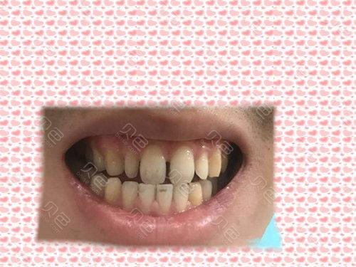 重庆地区牙缝大怎么修复多少钱?