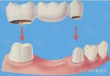 装烤瓷牙过程