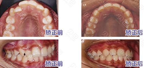 萍乡协合口腔牙齿矫正案例对比