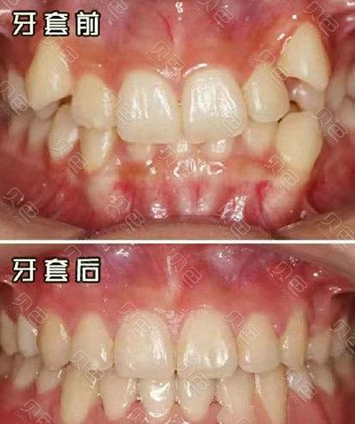 郑州唯美口腔牙齿矫正案例
