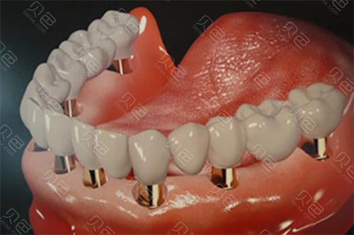 牙齿种植示意图