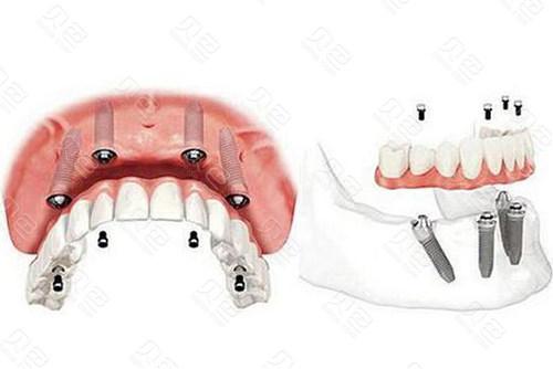 半口牙齿种植示意图