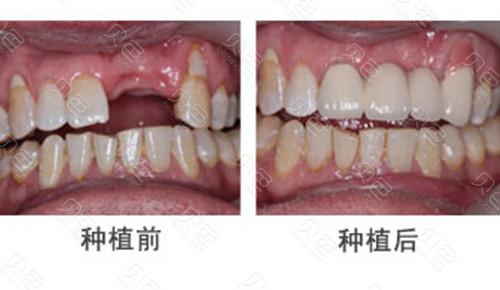 种植牙前后对比
