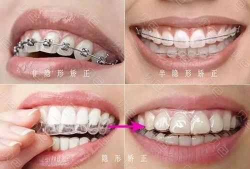 牙齿矫正方式示意图