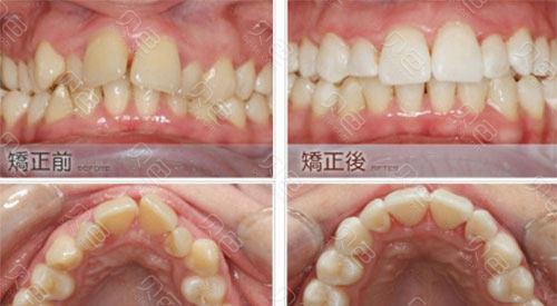 武汉德韩口腔医院牙齿矫正