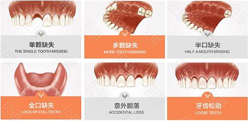 各种缺牙情况