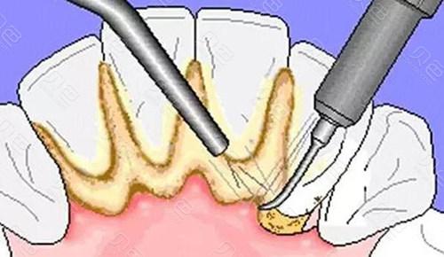 超声波洗牙