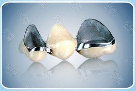 钴铬合金烤瓷牙