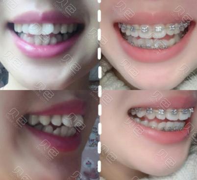 邯郸贝洁口腔医院牙齿矫正效果对比