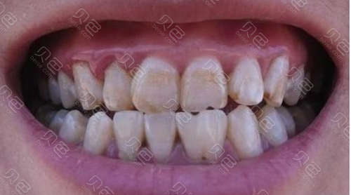 氟斑牙照片