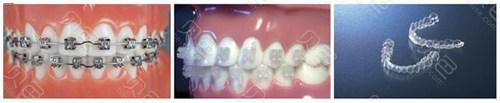 牙齿矫正方式